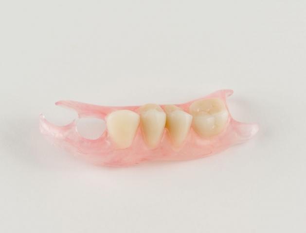 Appareil amovile résine en nylon avec des propriétés de design et de souplesse incomparables.