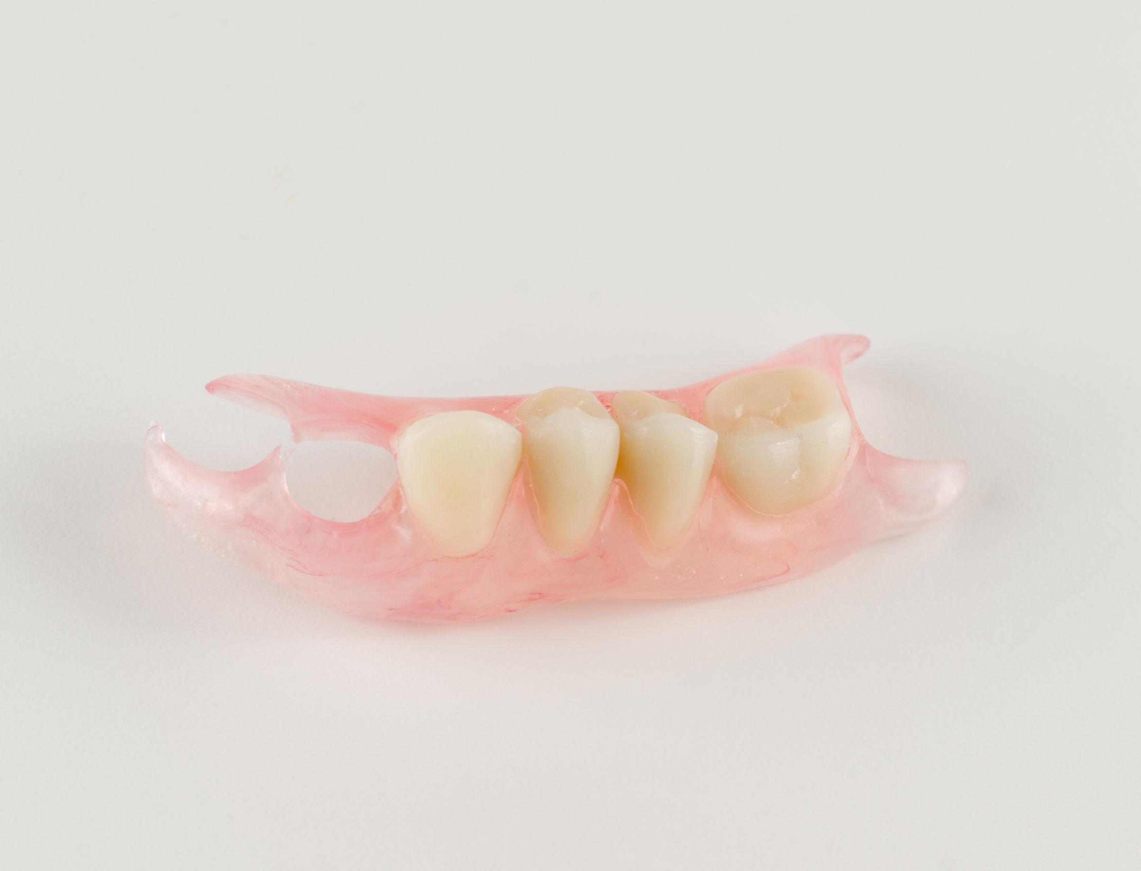 Valplast 4 Dents
