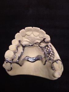 Stellite - prothèse Dentaire