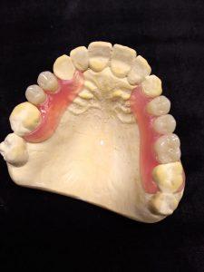 Valplast, Appareil résines dentaires flexibles
